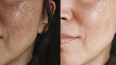 Taches pigmentaires : sont-elles causées par mes hormones?